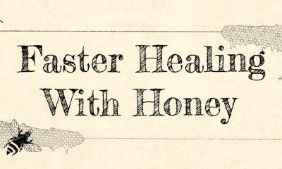 Honey, Burn Remedy, Natural Remedies